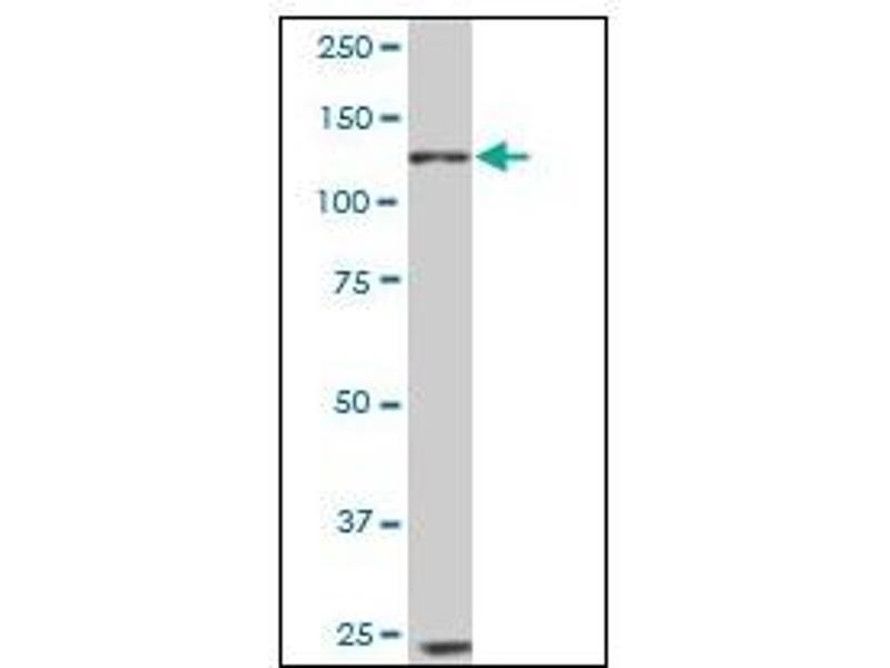 Western Blotting (WB) image for anti-EPH Receptor B6 (EPHB6) antibody (ABIN781859)