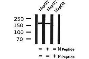 Image no. 1 for anti-Nuclear Factor of Activated T-Cells 5, Tonicity-Responsive (NFAT5) (pSer134) antibody (ABIN6269743)