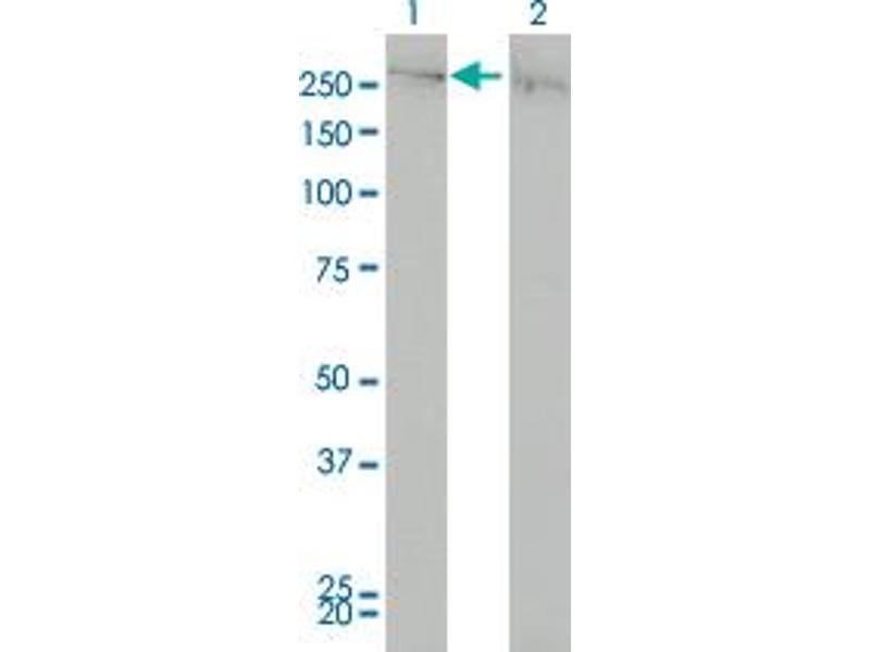 Western Blotting (WB) image for anti-Chromodomain Helicase DNA Binding Protein 4 (CHD4) (AA 1632-1731) antibody (ABIN4948202)