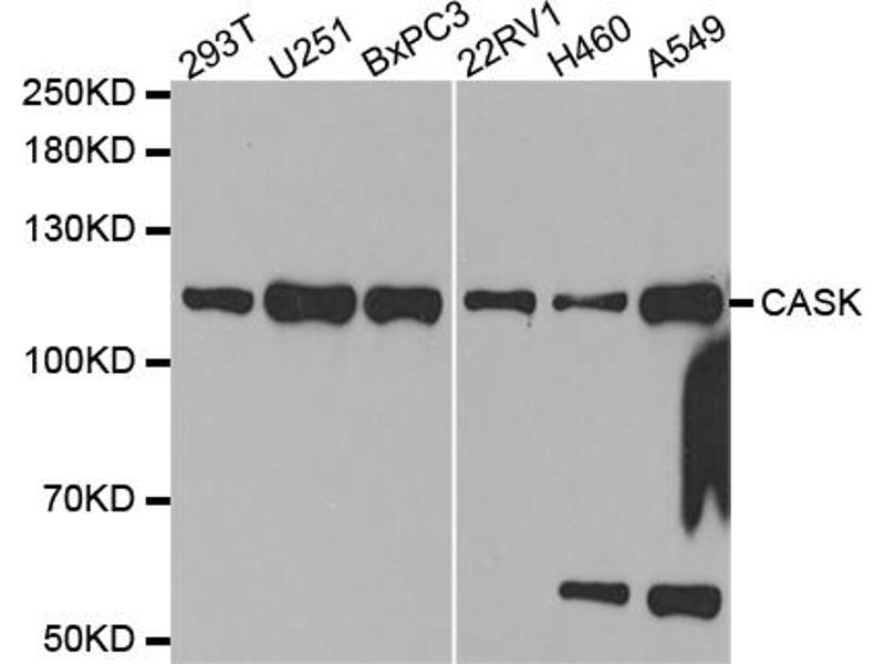 Image no. 1 for anti-Calcium/calmodulin-Dependent serine Protein Kinase (MAGUK Family) (CASK) antibody (ABIN6569236)
