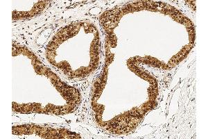 Image no. 1 for anti-Peptidylprolyl Isomerase (Cyclophilin)-Like 1 (PPIL1) (AA 1-166) antibody (ABIN6924531)