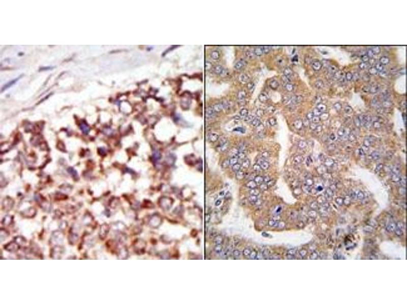 image for anti-P21-Activated Kinase 4 (PAK4) (N-Term) antibody (ABIN360324)