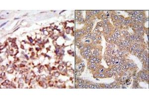 Image no. 2 for anti-P21-Activated Kinase 4 (PAK4) (N-Term) antibody (ABIN360324)