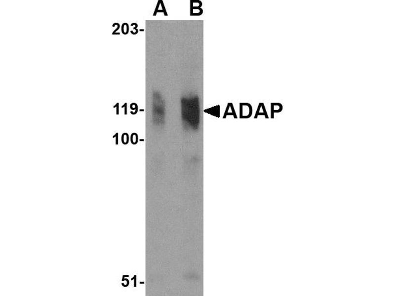 Western Blotting (WB) image for anti-FYB antibody (FYN-Binding Protein) (N-Term) (ABIN2155078)
