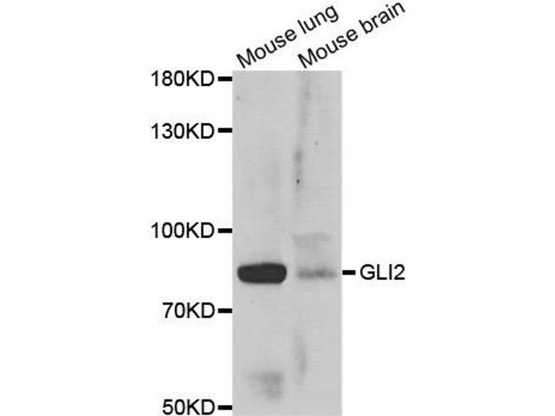 Image no. 2 for anti-GLI Family Zinc Finger 2 (GLI2) antibody (ABIN2562834)