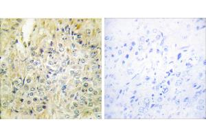 Image no. 1 for anti-Deleted in Lung and Esophageal Cancer 1 (DLEC1) antibody (ABIN1576084)