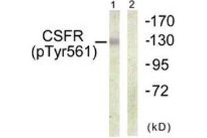 Western Blotting (WB) image for anti-CSF1R antibody (Colony Stimulating Factor 1 Receptor) (pTyr561) (ABIN1531563)