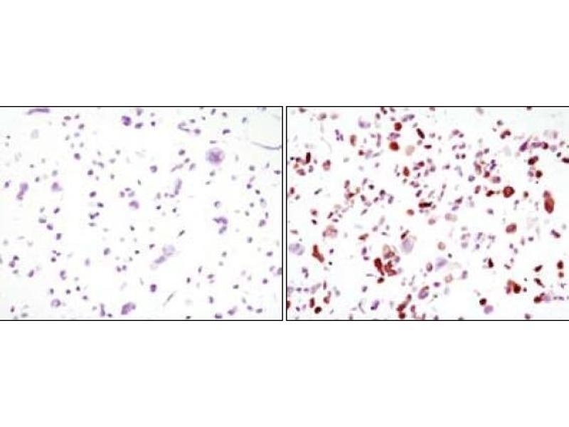 Immunohistochemistry (IHC) image for anti-Green Fluorescent Protein (GFP) antibody (ABIN3210020)