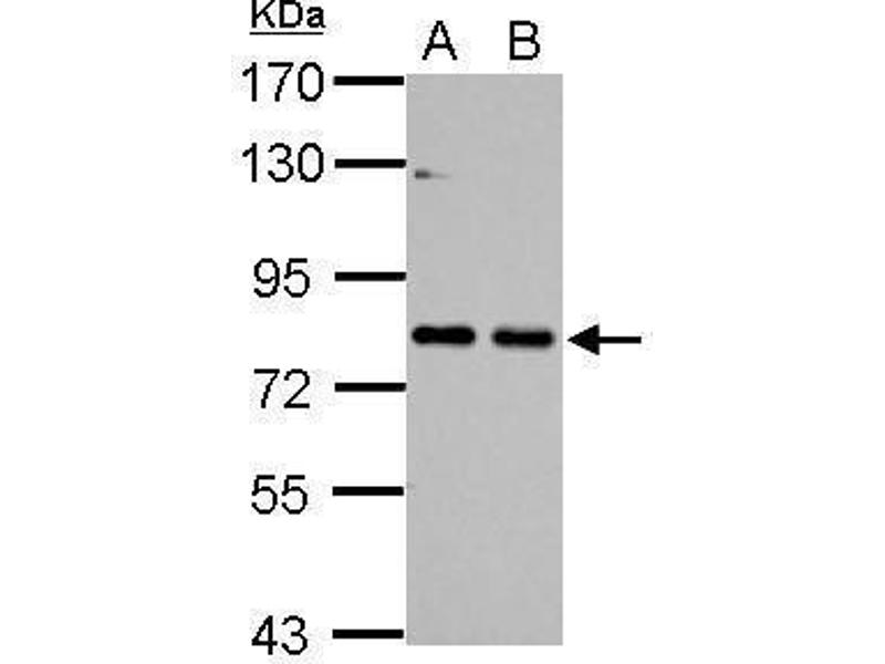 Western Blotting (WB) image for anti-Cortactin antibody (CTTN) (N-Term) (ABIN2854674)