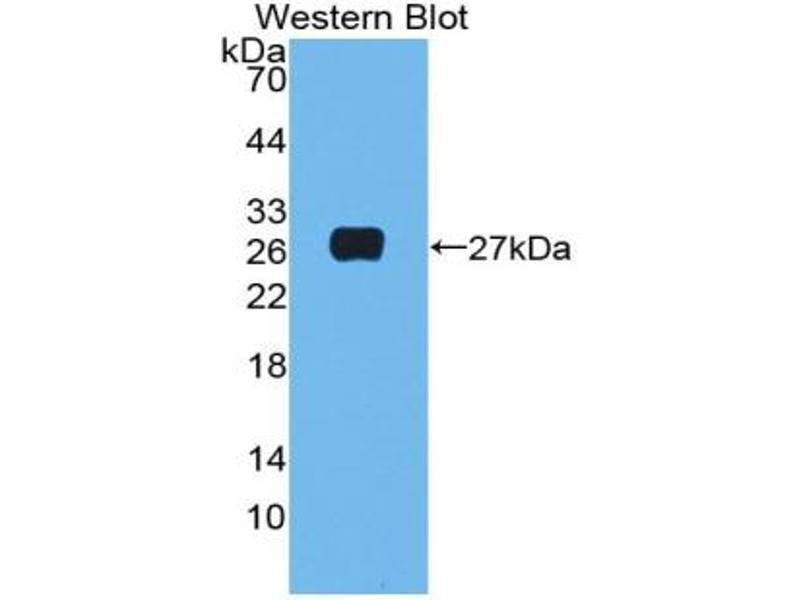 Western Blotting (WB) image for anti-Complement Component 1, Q Subcomponent, A Chain (C1QA) (AA 23-245) antibody (ABIN2896716)