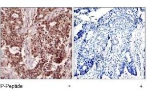 Immunohistochemistry (Paraffin-embedded Sections) (IHC (p)) image for anti-NFKB1 antibody (Nuclear Factor of kappa Light Polypeptide Gene Enhancer in B-Cells 1) (pSer927) (ABIN4339346)