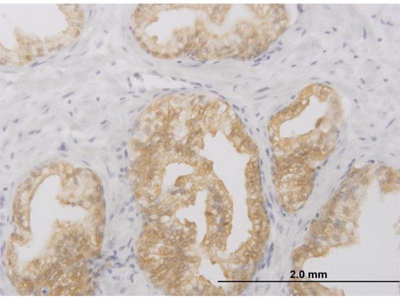 Immunohistochemistry (IHC) image for anti-Receptor-Interacting Serine-threonine Kinase 2 (RIPK2) (AA 431-541) antibody (ABIN393861)