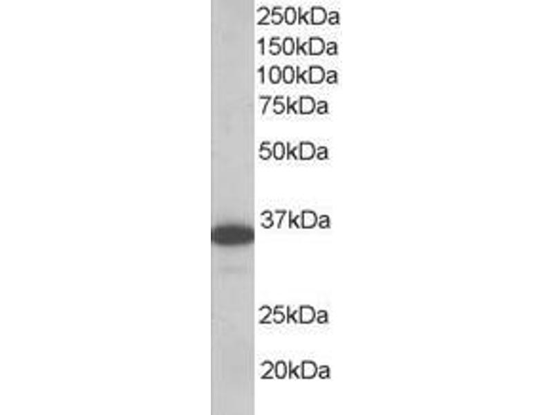 Western Blotting (WB) image for anti-Linker For Activation of T Cells (LAT) (C-Term), (Isoform A) antibody (ABIN250250)