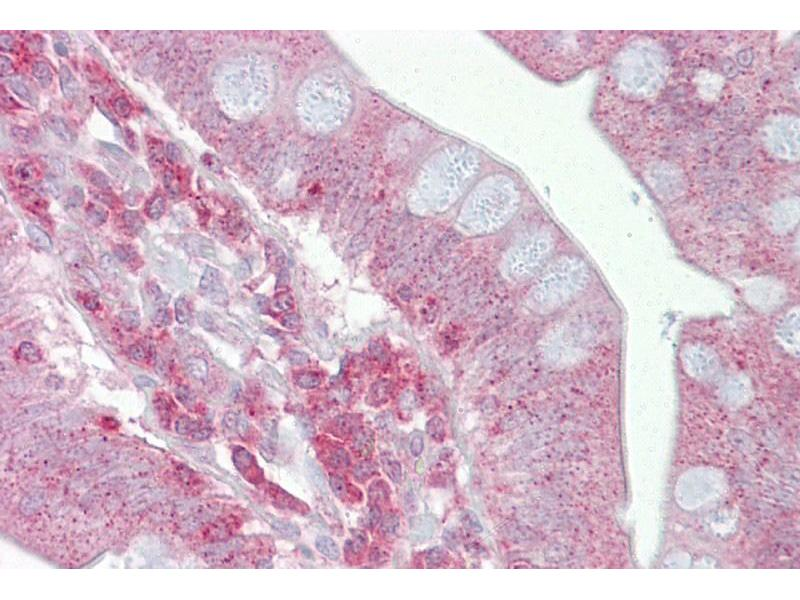 Immunohistochemistry (IHC) image for anti-Presenilin 1 (PSEN1) (Middle Region) antibody (ABIN2787886)