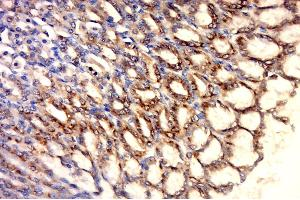 Immunohistochemistry (Paraffin-embedded Sections) (IHC (p)) image for anti-Heat Shock 60kDa Protein 1 (Chaperonin) (HSPD1) (AA 520-573) antibody (ABIN726080)