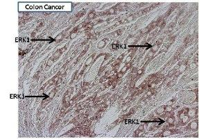 Immunohistochemistry (Paraffin-embedded Sections) (IHC (p)) image for anti-Mitogen-Activated Protein Kinase 3 (MAPK3) antibody (ABIN4309389)