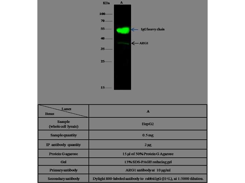 Immunoprecipitation (IP) image for anti-Arginase, Liver (ARG1) (AA 1-322) antibody (ABIN1998839)