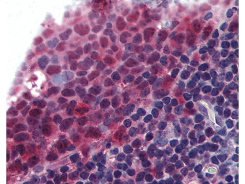 Immunohistochemistry (IHC) image for anti-Tumor Necrosis Factor (Ligand) Superfamily, Member 13b (TNFSF13B) (AA 254-269) antibody (ABIN295930)
