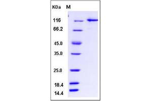 Image no. 1 for Ubiquitin-Like Modifier Activating Enzyme 1 (UBA1) (AA 2-1058) protein (GST tag,His tag) (ABIN2004962)