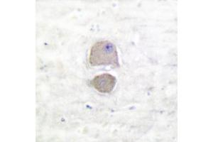 image for anti-BAX antibody (BCL2-Associated X Protein) (ABIN265325)
