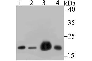 Image no. 1 for anti-NADH Dehydrogenase (Ubiquinone) 1 beta Subcomplex, 8, 19kDa (NDUFB8) (AA 30-130) antibody (ABIN6719199)