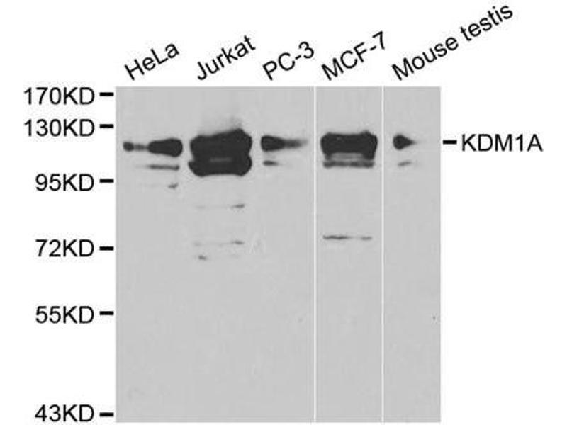 Western Blotting (WB) image for anti-Lysine (K)-Specific Demethylase 1A (KDM1A) antibody (ABIN1873389)