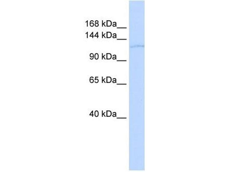 Western Blotting (WB) image for anti-TAF2 抗体 (TAF2 RNA Polymerase II, TATA Box Binding Protein (TBP)-Associated Factor, 150kDa) (Middle Region) (ABIN2777909)