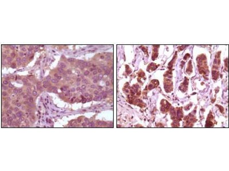 Immunohistochemistry (IHC) image for anti-Mitogen-Activated Protein Kinase 1 (MAPK1) antibody (ABIN3210001)