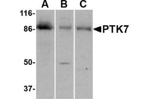 Western Blotting (WB) image for anti-PTK7 Protein tyrosine Kinase 7 (PTK7) (C-Term) antibody (ABIN4348545)