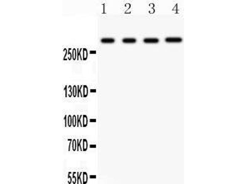 Western Blotting (WB) image for anti-Inositol 1,4,5-Trisphosphate Receptor, Type 1 (ITPR1) (AA 2411-2758) antibody (ABIN3043862)