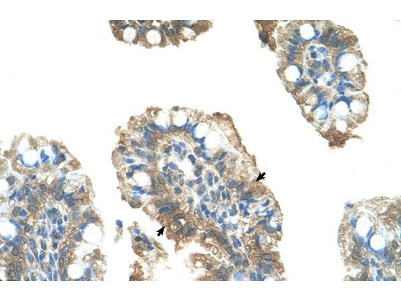 Immunohistochemistry (IHC) image for anti-Poly (ADP-Ribose) Polymerase Family, Member 6 (PARP6) (C-Term) antibody (ABIN309724)