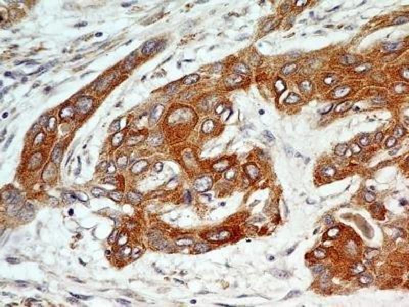 Immunohistochemistry (Paraffin-embedded Sections) (IHC (p)) image for anti-Fibroblast Growth Factor Receptor 1 (FGFR1) (Isoform alpha), (Isoform beta) antibody (ABIN250617)