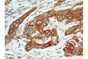 Immunohistochemistry (Paraffin-embedded Sections) (IHC (p)) image for anti-FGFR1 antibody (Fibroblast Growth Factor Receptor 1) (Isoform alpha) (ABIN250617)