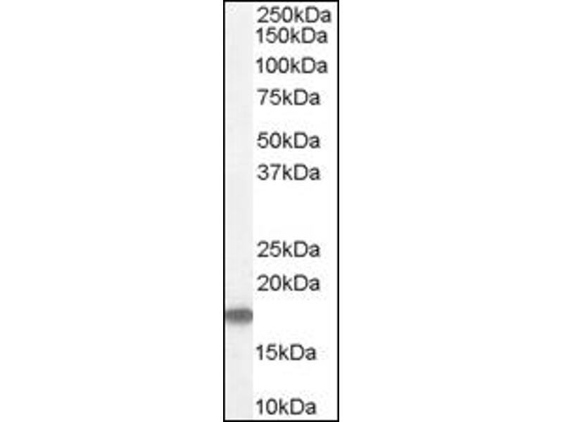 image for anti-Stathmin 1 antibody (STMN1) (C-Term) (ABIN374648)