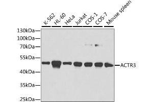 Western Blotting (WB) image for anti-ARP3 Actin-Related Protein 3 Homolog (Yeast) (ACTR3) antibody (ABIN3021339)