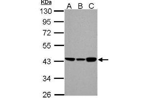 Image no. 1 for anti-Acyl-CoA Dehydrogenase, C-4 To C-12 Straight Chain (ACADM) (Center) antibody (ABIN2854769)