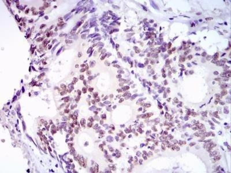 Immunohistochemistry (Paraffin-embedded Sections) (IHC (p)) image for anti-Tumor Protein P53 Binding Protein 1 (TP53BP1) (AA 350-400) antibody (ABIN151770)