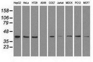 Western Blotting (WB) image for anti-ERK2 antibody (Mitogen-Activated Protein Kinase 1) (Transcript Variant 2) (ABIN4309411)