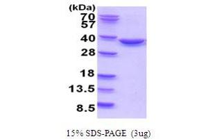 Image no. 1 for TatD DNase Domain Containing 1 (TATDN1) (AA 1-297) protein (His tag) (ABIN5854038)