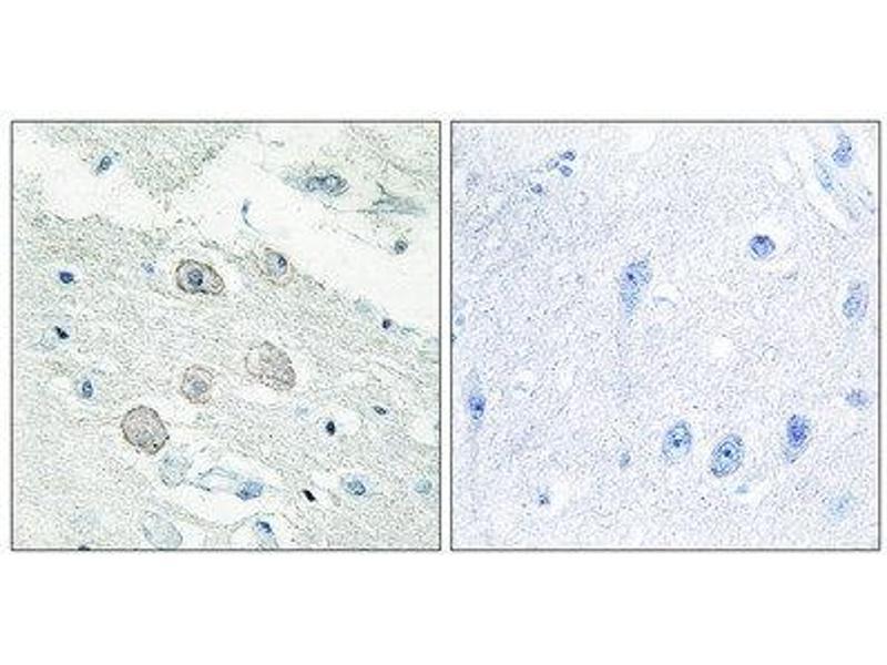 Immunohistochemistry (IHC) image for anti-JAK1 antibody (Janus Kinase 1) (N-Term) (ABIN1849256)