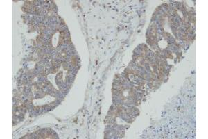 Image no. 1 for anti-N-Myc (And STAT) Interactor (NMI) (Center) antibody (ABIN2855502)