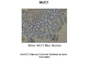 Image no. 8 for anti-Mucin 1, Cell Surface Associated (MUC1) (C-Term) antibody (ABIN2776819)