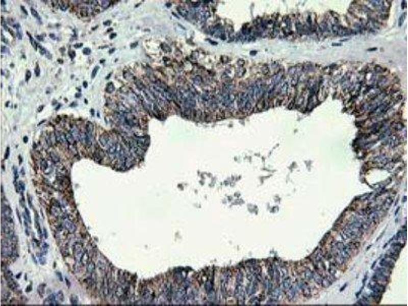 Immunohistochemistry (Paraffin-embedded Sections) (IHC (p)) image for anti-Cerebral Cavernous Malformation 2 (CCM2) antibody (ABIN4288903)