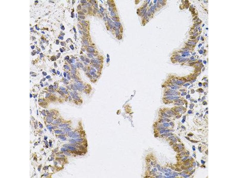 Immunohistochemistry (IHC) image for anti-Sepiapterin Reductase (SPR) antibody (ABIN2737579)