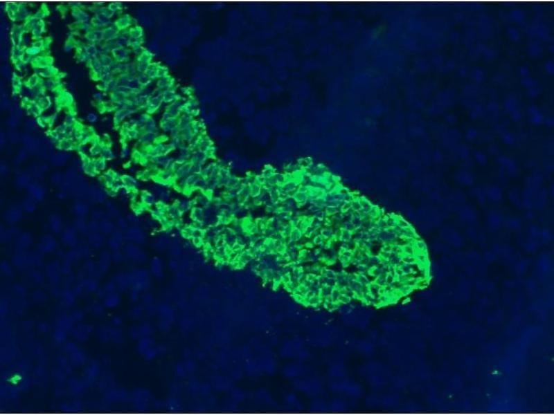 image for anti-Keratin 5/8 (KRT5/8) antibody (ABIN335282)