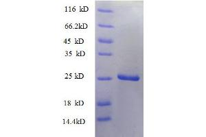 Image no. 1 for Tumor Necrosis Factor (Ligand) Superfamily, Member 9 (TNFSF9) (AA 52-254), (partial) protein (His tag) (ABIN1046588)