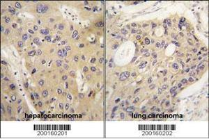 Immunohistochemistry (IHC) image for anti-ATG12 antibody (Autophagy Related 12) (ABIN387794)