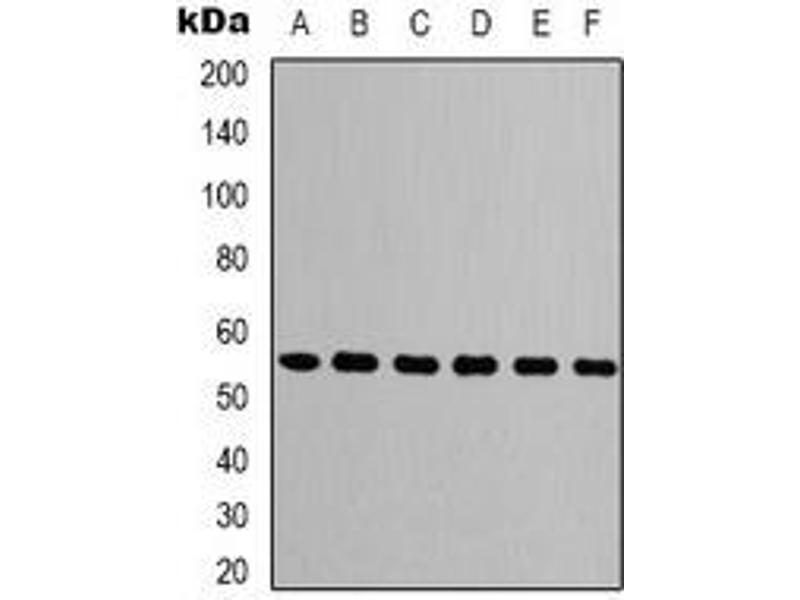 Western Blotting (WB) image for anti-Tubulin, beta (TUBB) antibody (ABIN2852696)