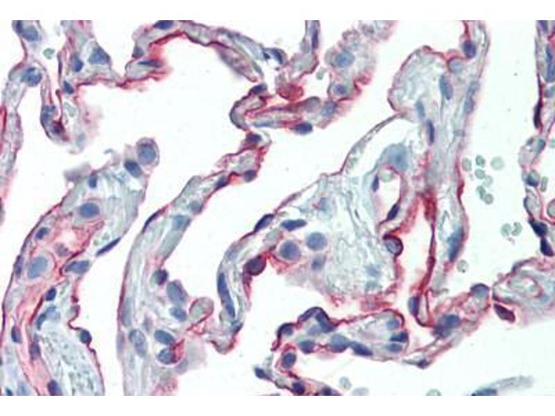Image no. 1 for anti-Intercellular Adhesion Molecule 1 (ICAM1) antibody (ABIN462119)