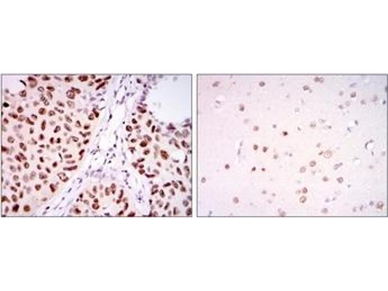 Immunohistochemistry (IHC) image for anti-PC4 and SFRS1 Interacting Protein 1 (PSIP1) antibody (ABIN1108769)